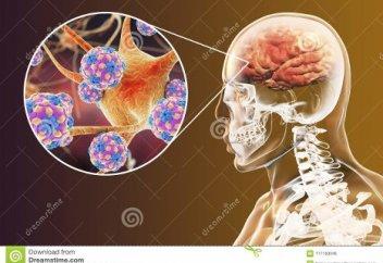 Ученые заявили, что коронавирус может поражать мозг