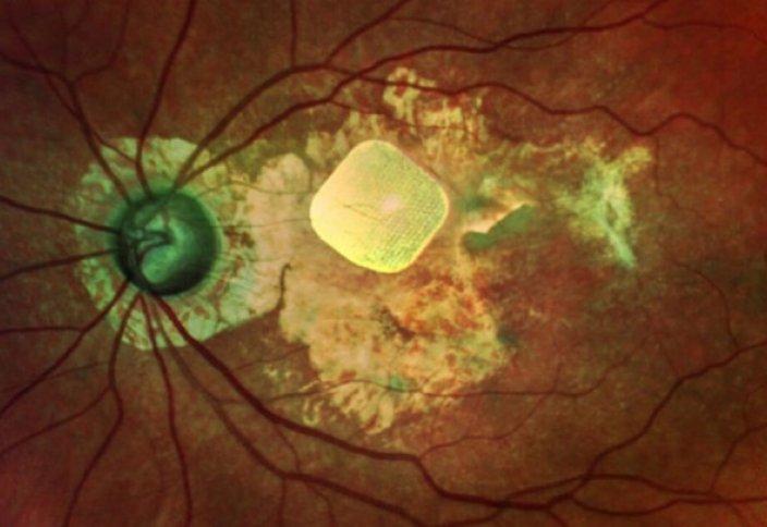 Новые имплантаты позволят слепым видеть. Новые биосенсоры и имплантаты будут работать от энергии человека