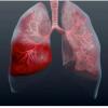 От чего бывает пневмония: дисбактериоз в легких