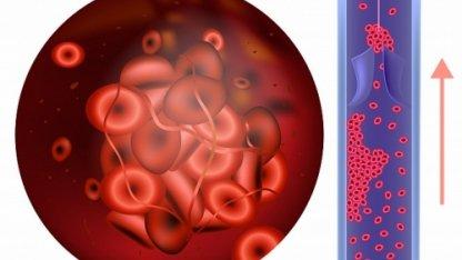 Доктор рассказала об опасности еще одного лекарства при коронавирусе. Врач показала последствия домашнего лечения дексаметазоном