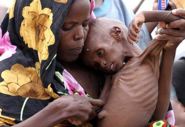 Сомали: дети гибнут от голода