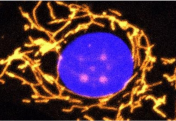 Гендік терапия соқырлыққа бастайтын, емі жоқ көз ауруынан айықтырады
