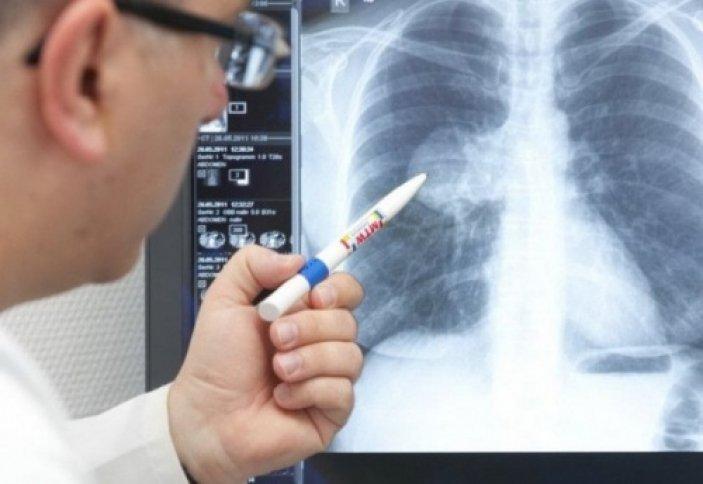 Дәрігер пневмония кезінде не істеуге болмайтынын айтты