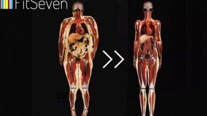 Как сжечь висцеральный жир?