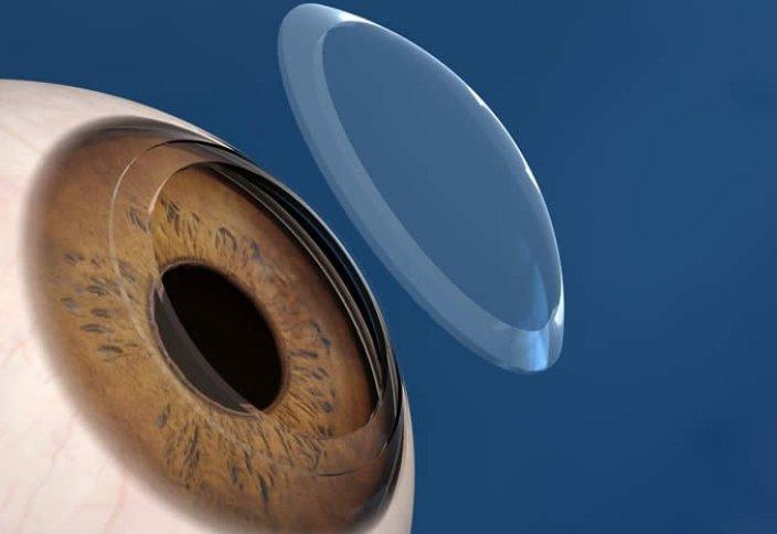 Адамзаттың 97%-ы шалдыққан көз ауруының емі табылды