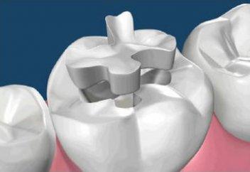 Действительно ли полное омовение (гусуль), если на зубах стоят пломбы?