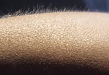 Тарихта тұңғыш рет діңгекті жасушадан түгі мен жүйке талшығы бар адам терісі өсірілді (фото)