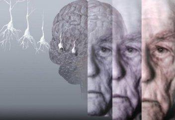 Альцгеймерді емдеудің күтпеген тәсілі табылды