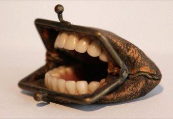 Как нас разводят стоматологи? Что нужно знать, чтобы не остаться без денег