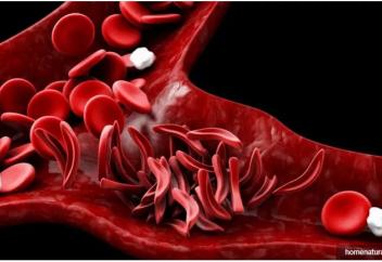 Орақ тәрізді жасушалы анемияны бір минутта анықтаудың тәсілі табылды