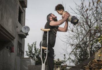 Фото отца с сыном без ног и рук победило на конкурсе Siena International Photo Awards (фото+видео)