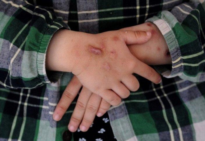 Шрамы больше не в моде: найден способ заживления кожи без рубцов