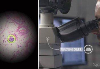 Google рак жасушаларын анықтайтын компьютер жасап шығарды (видео)
