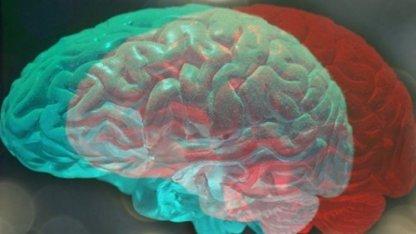 Wired (США): произойдет ли при пересадке человеческой головы пересадка сознания?