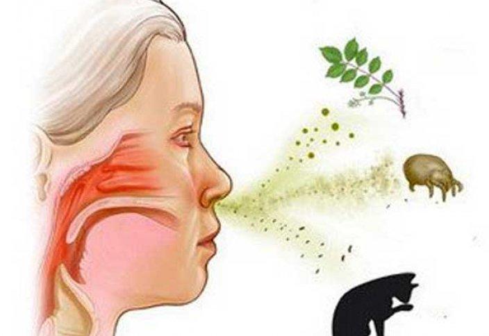 Аллергияның пайда болу себептері